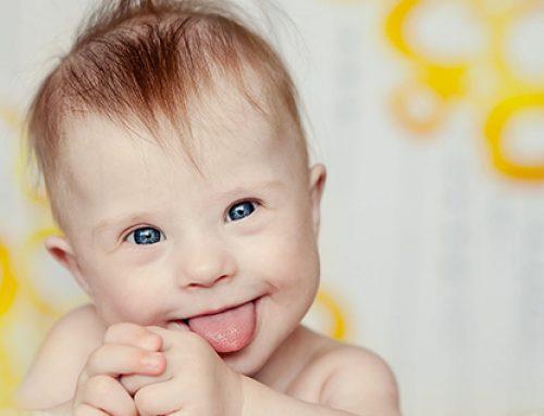 Reino Unido: 339 bebés con síndrome de Down fueron abortados en 6 meses.